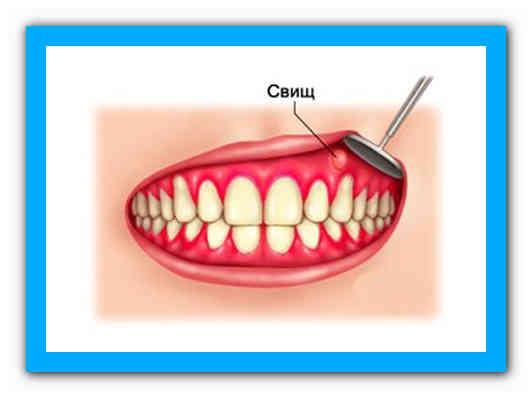 У основании десны дырка в зубе