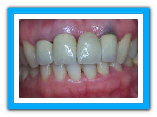 Синяки на деснах при прорезывании зубов