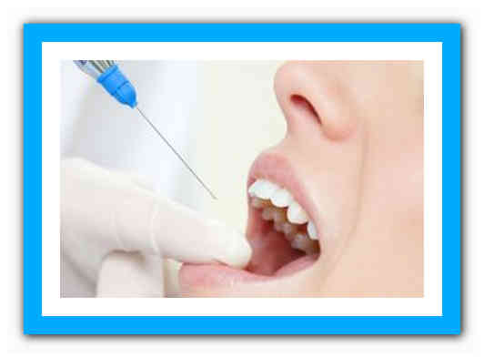 Через сколько проходит анестезия после удаления зуба