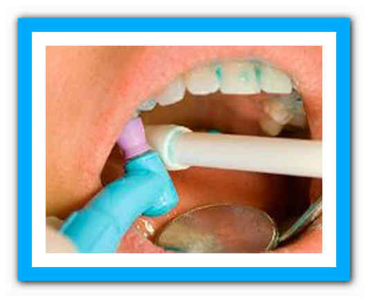 После удаления зубного камня долго болят зубы. Что делать, если после отбеливания или чистки от камня ультразвуком болят зубы, и повысилась их чувствительность