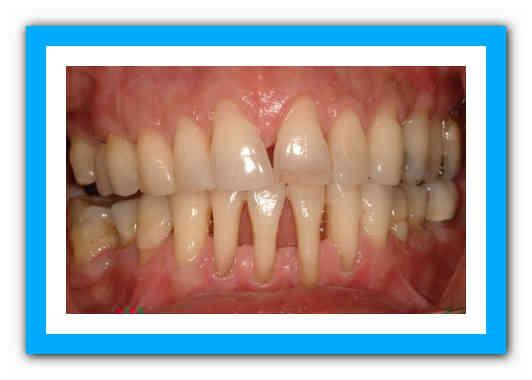 Как укрепить шатающиеся зубы при пародонтозе