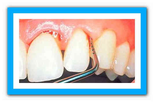 Если мазь для пародонтита зубов